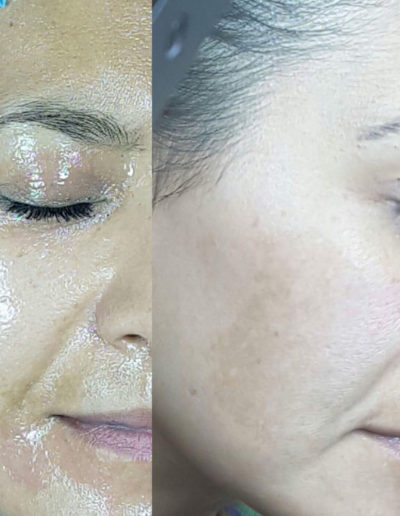 MicroNeedling Before and After Photos - Patient 3
