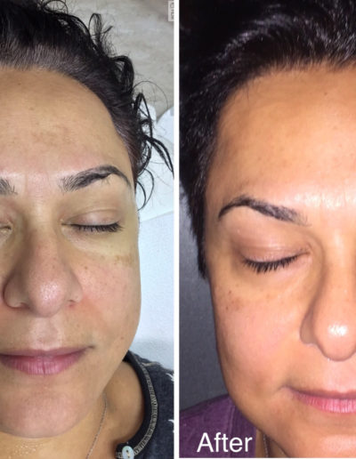 MicroNeedling Before and After Photos - Patient 7
